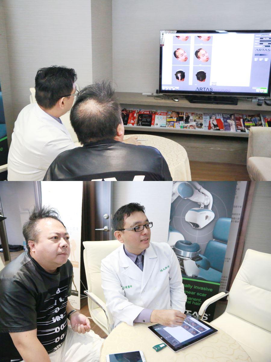 董哥董至成來羅丹診所諮詢植髮,楊名權醫師透過3D模擬圖做說明