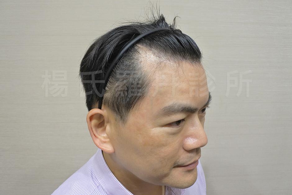 雄性禿 , 植髮推薦