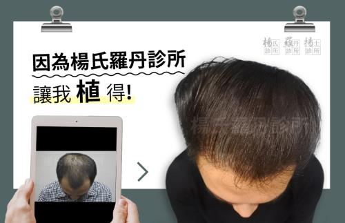【植髮】因為楊氏羅丹診所,讓我植得!