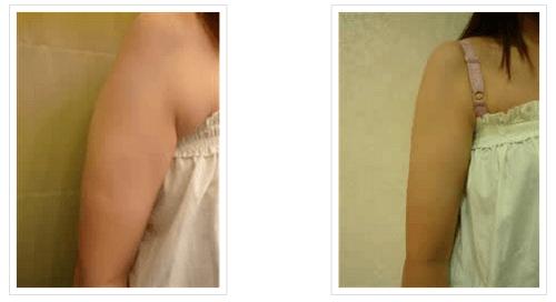 救救我的粗手臂 -- 雷射減脂手臂實例