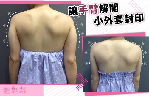 【雷射減脂】讓手臂解開小外套封印