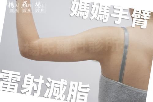 【雷射減脂】拯救我的媽媽手臂!