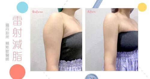【台北˙雷射減脂瘦手臂】雷射減脂改變我的厚片人生!