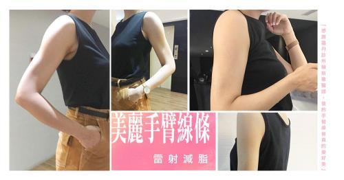 【台北˙雷射減脂瘦手臂】雷射減脂給妳美麗手臂線條!