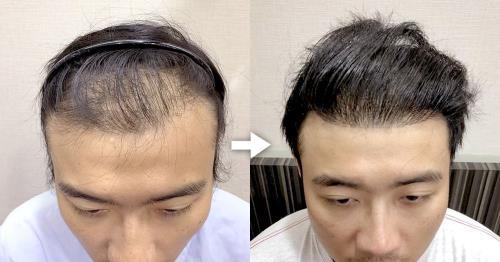 【台北‧植髮】初次體驗羅丹診所ARTAS系統植髮(機器人植髮)