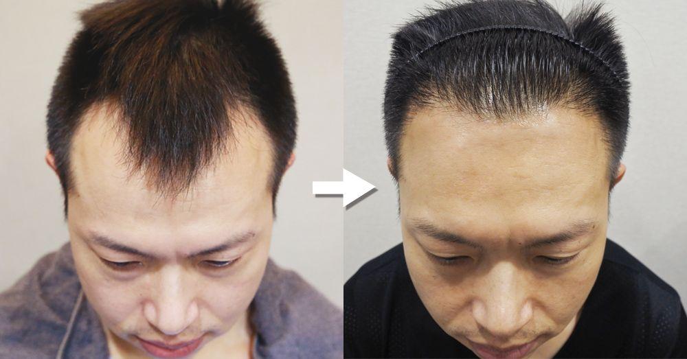 【台北˙植髮】到羅丹診所植髮,不想再忍受M型禿了!