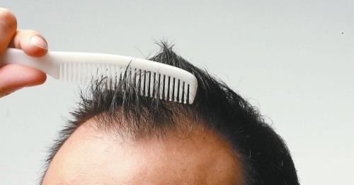 常洗頭戴安全帽恐禿頭 醫師破解迷思
