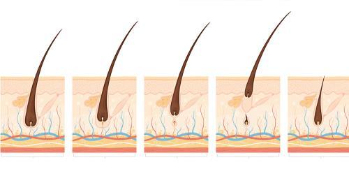 自我檢測雄性禿 遠離落髮危機植髮名醫楊名權這樣說