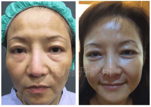 現代化的眼袋,淚溝複合式手術