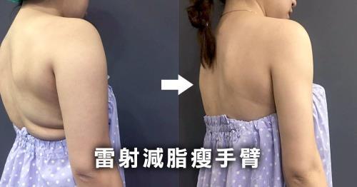 雷射減脂瘦手臂-副乳和厚背也消失了!