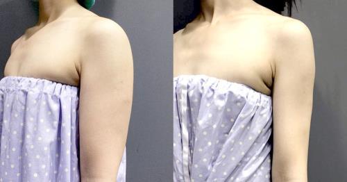 【台中‧雷射減脂瘦手臂】六月新娘婚前緊急大改造!術後4個月心得分享