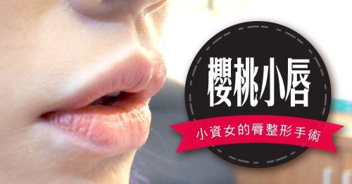 【台北‧縮唇(縮脣)手術】我有美美的唇珠了!香腸嘴變櫻桃小嘴♥術後半年心得分享
