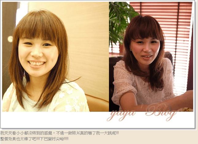 Yaya的姊妹午茶美容-肉毒桿菌除皺&瘦小臉