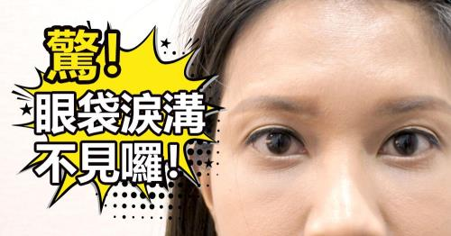 【新竹‧眼袋淚溝手術】終結惱人黑眼圈!術後三個月心得分享