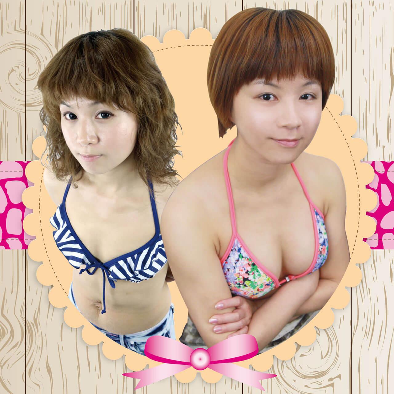 小資女Elena大變身,自體脂肪隆乳+雷射減脂
