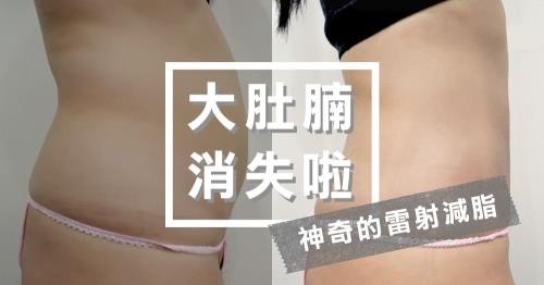 神奇的雷射減脂瘦小腹 肥滋滋油肚永遠不見啦!