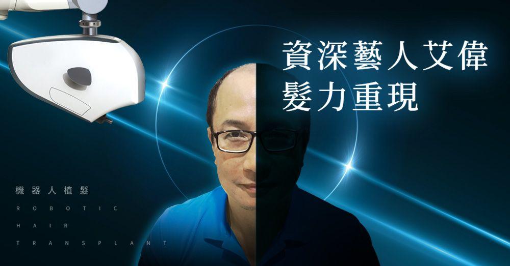 髮力重現!男神艾偉公開ARTAS系統植髮育髮毛髮移植心路歷程