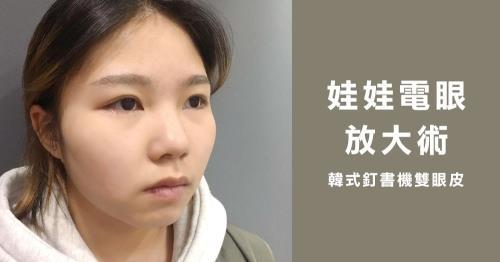 娃娃電眼放大術  韓式釘書針雙眼皮手術全紀錄!
