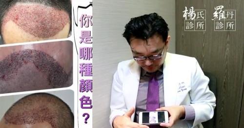 植髮如何才算滿意?高密度+高存活率是關鍵