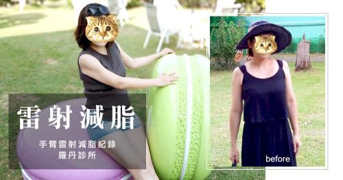 【台北‧雷射減脂瘦手臂】肉肉女的逆襲消除胖手臂!