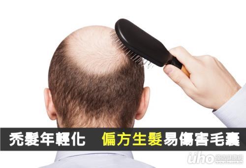 禿髮年輕化 偏方生髮易傷害毛囊